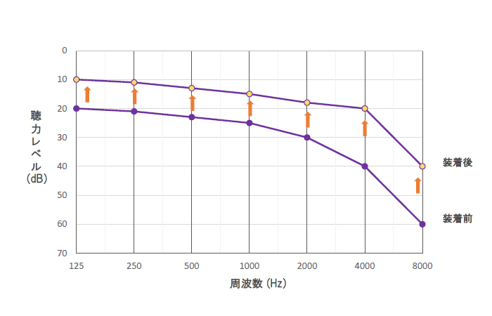 集音器による聴力改善のイメージグラフ