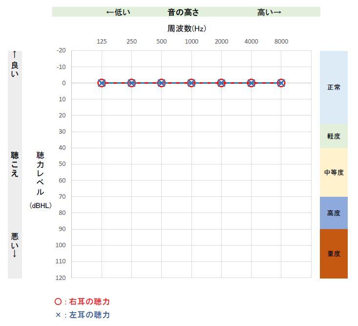 オージオグラフ表示イメージ