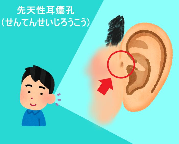 先天性耳瘻孔(せんてんせいじろうこう) 耳の付け根の穴