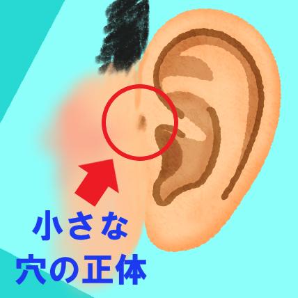 耳の付け根の小さな穴の正体 魚のエラとの関係性? 耳瘻孔(じろうこう)